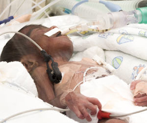 Study Offers Fresh Insights into How to Protect Premature Babies from Common Brain Disorder