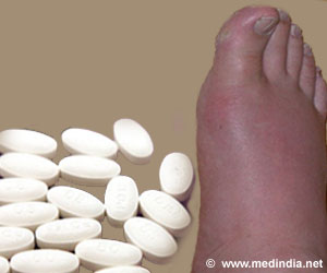 Gout-Treating drug could prevent Obesity-related Type 2 Diabetes