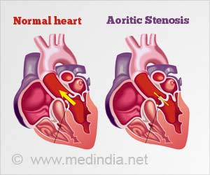 Aortic Valve Disease may not be a Valvular Equivalent of Atherosclerosis