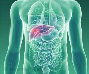 Chimeric Gene the Driving Factor for Hepatocellular Carcinoma