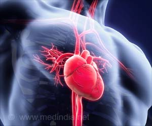 Novel Tool to Assess Tissue Damage Caused by Heart Attack