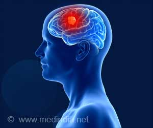 No Clear Link Between Exposure to Electromagnetic Fields and Brain Tumor Risk