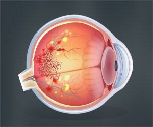 Eye Complication in Diabetes may Contribute to Lymphatic Neovascularization