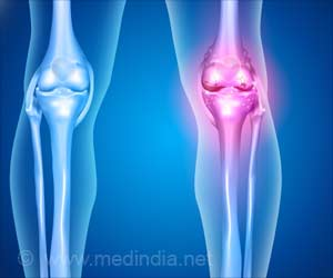 Steroid Hormones May Help Reduce Bone Loss Related to Aging