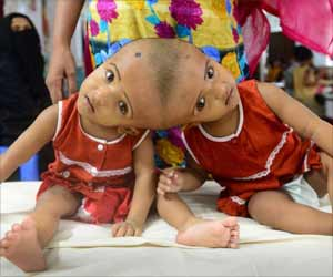 Dhaka Twins Conjoined at Head now Separate and Stable