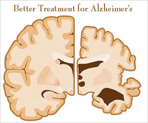 Benefits of Laser Transcatheter Treatment in Alzheimer's Disease