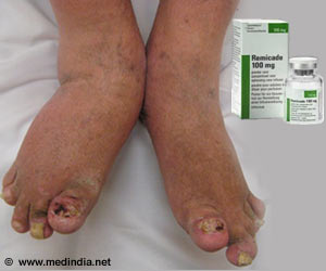 Novel Topical Cream Developed For Psoriasis Treatment
