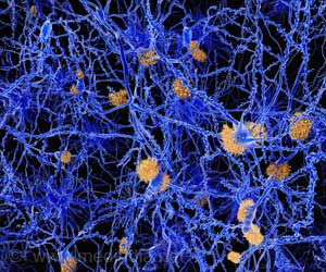 Association Between the 2 Key Proteins of Alzheimer's Explained