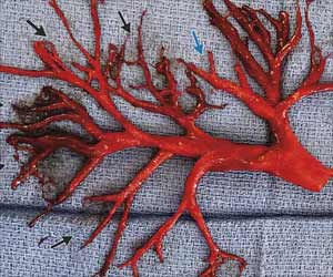 Cause Of Blood Clots Distinguished by New Tool