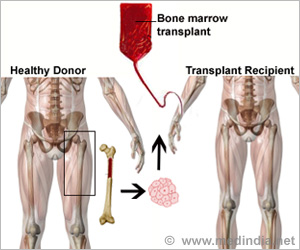 Noninvasive Method to Detect Bone Marrow Cancer Proposed