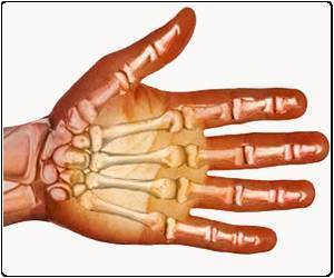 35-Year-Old Woman's Hand Restored By a Complex Reconstructive Surgery In Chennai