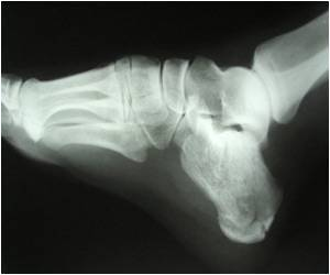 Ankle Fractures Could be a Significant Risk Factor