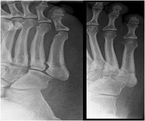 Gene Responsible for Bone Mineral Density And Fracture Risk Identified