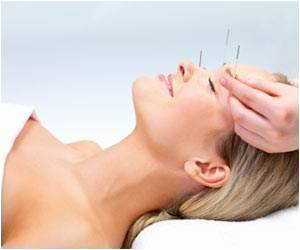 Menopausal Symptoms Reduce with Acupuncture