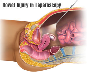 Delayed Diagnosis of Bowel Injury in Laparoscopy is Associated with Higher Mortality Rates