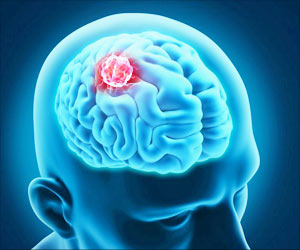 Recurrent Brain Tumor Induced by a Gene Mutation Can be Treated Using Targeted Therapy