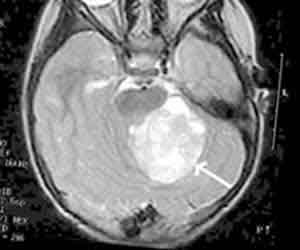 New Drug Enhances Radiation Treatment for Brain Cancer