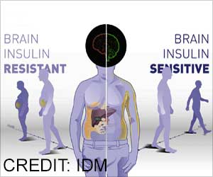 Brain Insulin Sensitivity can Determine Body Weight and Fat Distribution