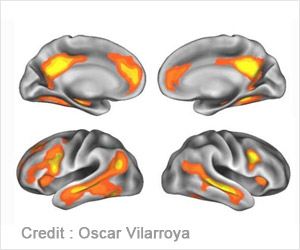 Practise can Change the Way the Brain Uses Sensory Information