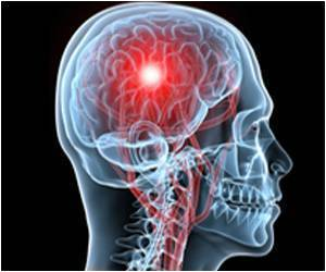 Brain Stimulation Offers Relief To Epileptics