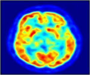 Imaging Studies Reveal Activation of Brain Areas Associated With Perception
