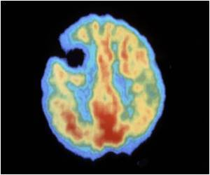 Plaque Formation in Alzheimer's Disease Aggravated by Inflammatory Mediator