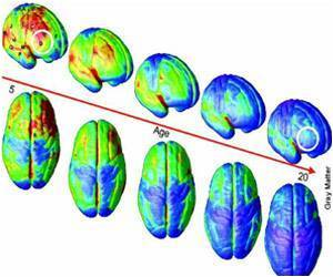 Brain Development Continues at Same Pace in In Late Teens