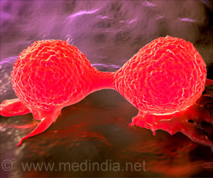 New Way to Hinder Spread of Breast Cancer Cells Discovered
