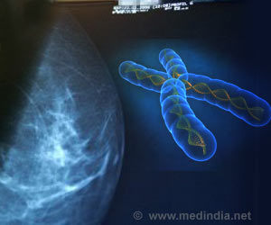 93 Genes Triggering Breast Cancer Identified