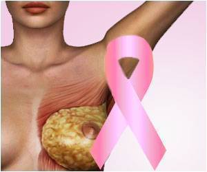 Breakthrough Breast Cancer Drug Effectively Treats Cancer, Reduces Chemo's Side Effects