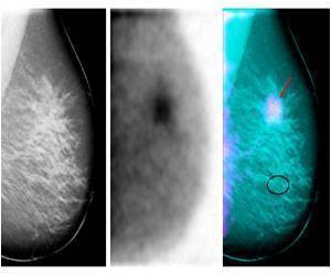 New Imaging Technology Gives New Ways to Diagnose, Treat Breast Cancer