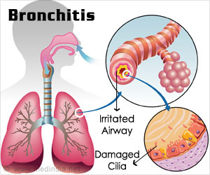 Bronchitis If Not Treated Properly can Lead to Serious Conditions Like Pneumonia