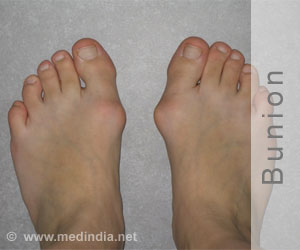 41-year-old With Deformed Bunion In Both Feet Cured By Scarf Oesteotomy in India