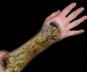 New Non-Invasive Method may Help Prevent Burn Scars