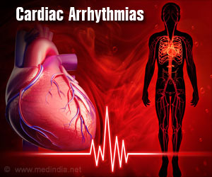 New Treatment Options for Heart Arrhythmia