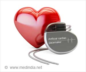 Wide Variation among Hospitals in Complications after Cardiac e-Device