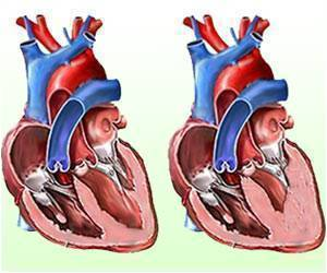 Heart Complications in Young, Middle Aged Adults Could Increase With Use of Marijuana.