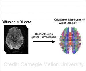 Now a Brain 'Fingerprint' to Identify a Person?