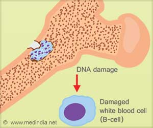 CAR T Immunotherapy Shows Promise in Treating Multiple Myeloma