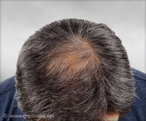 What Causes Baldness and Gray Hair?