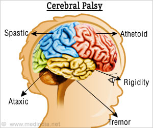 Cerebral Palsy Tied to Raised Risk for Mental Health Disorders
