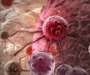 Myeloid Leukemia Can Now be Put To Stop by Blocking Its Growth Factor