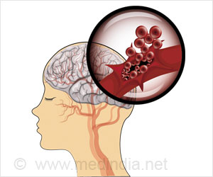 Risk of Depression and Dementia Increases in Bleeding Stroke Survivors