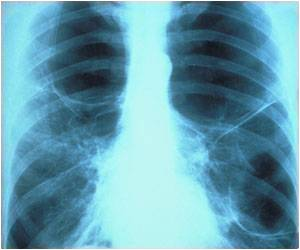 Protein That Plays Key Role in Many Lung-related Ailments Discovered