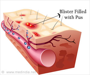 New Insights on the Causes That Increase Shingles Risk