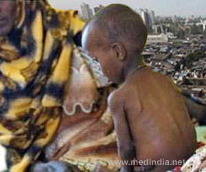 Malnourished Nigerian Child Abandoned by Family Makes Incredible Recovery