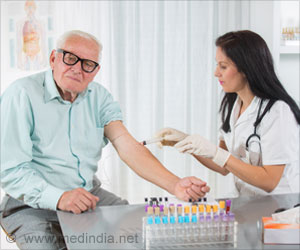 Cholesterol Test Can be Done in a Non-Fasting State