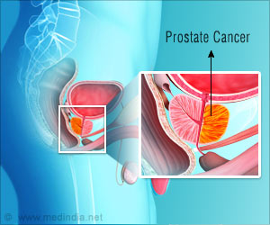 New Combination Chemotherapy for Advanced Prostate Cancer Patients Discovered