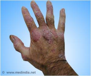 Severe Psoriasis Linked to Diabetes Risk