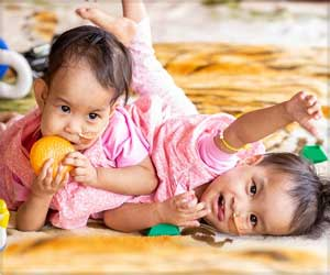 Conjoined Bhutanese Twins Undergo Major Separation Surgery in Melbourne